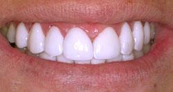 APRÈS - Exemple de cas de dentisterie esthétique