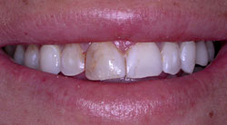 AVANT - Exemple de cas de dentisterie esthétique