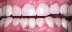 APRÈS - Dentisterie esthétique