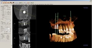 Image de radiologie